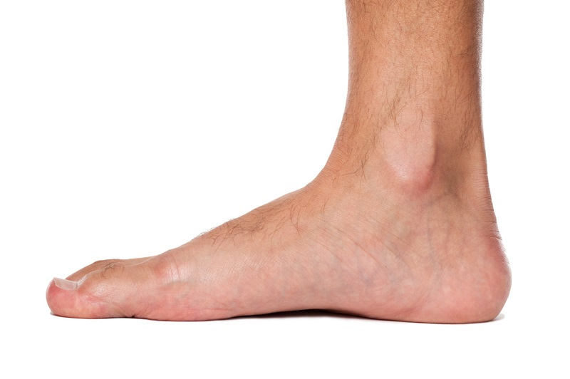 flat feet treatment sydney